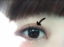 一重の線が出現した二重整形手術後の桃の目/桃オフィシャルブログ(Ameba)より