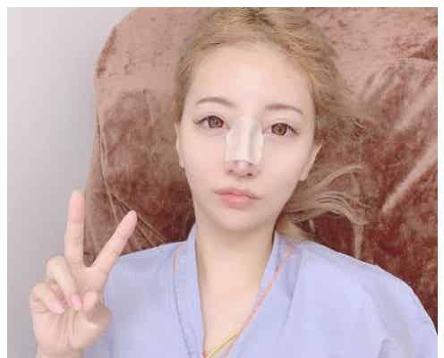 双子モデル・吉川ちえ、鼻の整形手術を報告 整形総額は700万超に