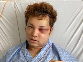顔を失ったイケメン俳優・間瀬翔太の今は?7時間の手術乗り越えて