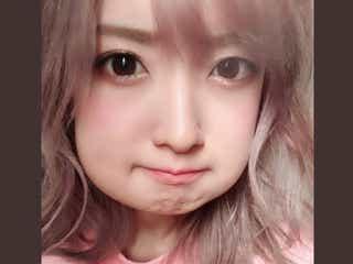 須藤凜々花、親知らず2本抜歯 頬が腫れ上がった自撮りに「加工かと思った」の声