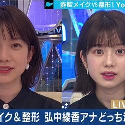 """弘中綾香アナの""""詐欺メイク""""にどよめき 整形シミュレーションも公開"""