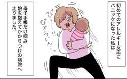 わが子がアレルギー発症! 親が気を付けることと卵不使用のオススメ商品4つ【母で主婦で時々オタクの日々】