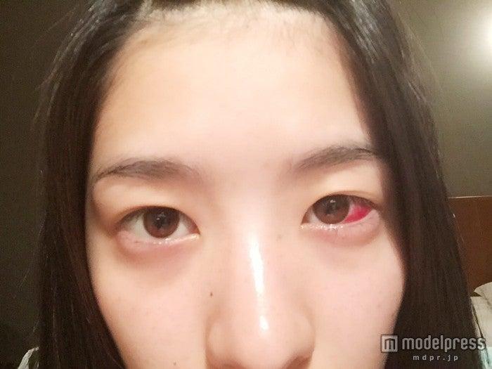 手術直後の目は血でにじんでいた