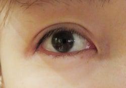 二重整形手術直後の桃の目/桃オフィシャルブログ(Ameba)より