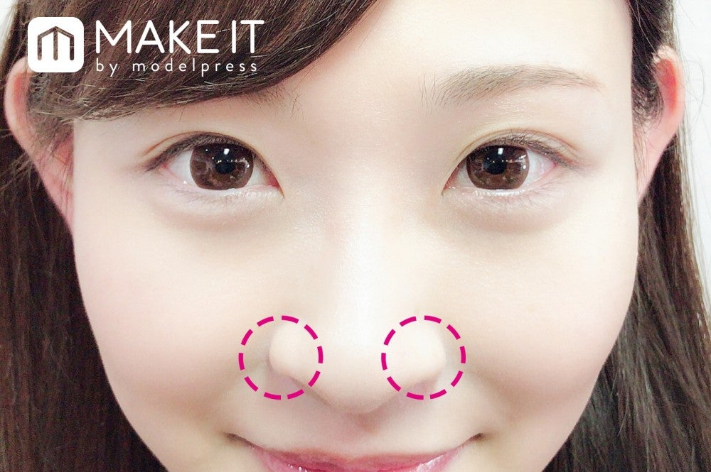 鼻の穴 整形