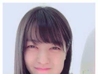 親知らず上下同時抜歯の矢島舞美、顔写真を公開「笑っちゃった」
