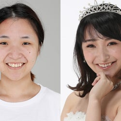 <整形ビフォーアフター>ダウンタイムの苦労も明かす…太田佑佳さん「外見のせいで卑屈になってしまう自分が嫌だった」