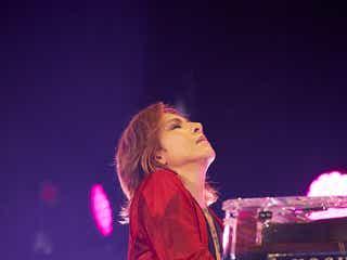 "X JAPAN・YOSHIKI、ファン交流で右手首靭帯の状態悪化 ""異例""アナウンスも"