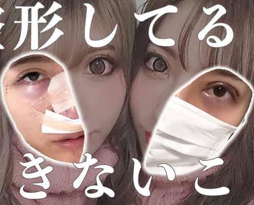 """双子モデル""""ちえちか""""「整形してるとできないこと」暴露動画が100万回再生突破"""
