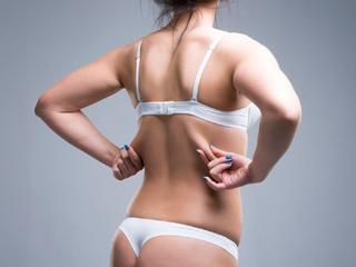 背中の脂肪をどうにかしたい!正しい姿勢やダイエットのコツを紹介