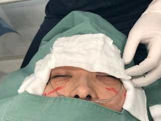 YouTuberヒカル、整形手術を公開 4時間に及ぶクマ切開脂肪摘出