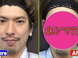 りんたろー。、オカリナ、磯野貴理子が 最新美容整形法「ハイフ」に挑戦!その効果は?
