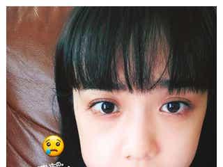 松井愛莉、親知らず抜歯を報告 腫れた頬に「痛そうだけど可愛い」と反響