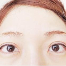 「あいのり」桃、整形したての目を公開