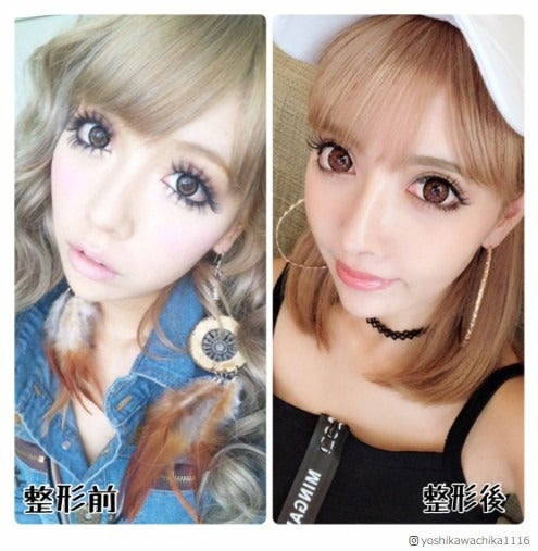 双子モデルの妹・吉川ちか、整形前後を比較 目・鼻・輪郭など
