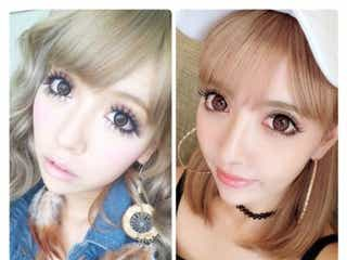 双子モデルの妹・吉川ちか、整形前後を比較 目・鼻・輪郭など複数箇所を施術