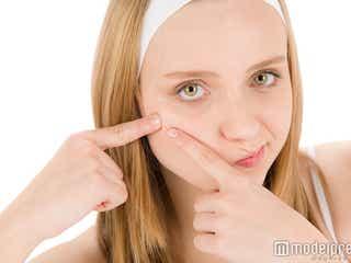 """実は怖い!""""冷え""""が引き起こす美容への悪影響って知ってる?"""