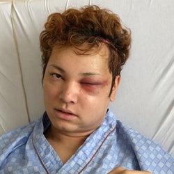 10万人1人の難病で顔面崩壊したイケメン俳優の現在は?『爆報!THE フライデー』