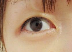 二重整形手術前・一重の桃の目/桃オフィシャルブログ(Ameba)より